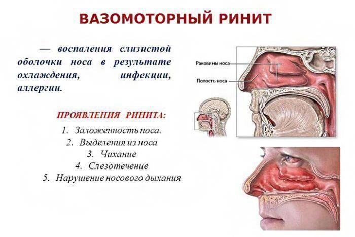 хронический вазомоторный аллергический ринит