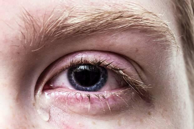 Глисты в глазах у человека: симптомы и лечение