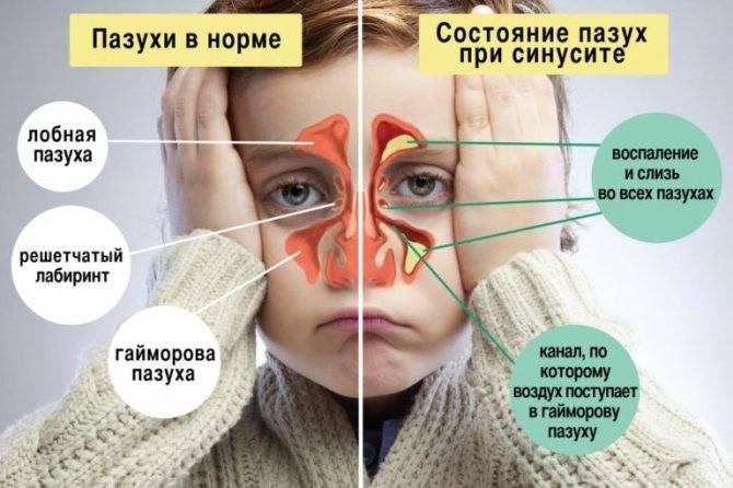 у ребенка текут сопли и слезятся глаза
