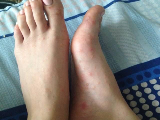 Дерматит на ногах: как выглядит заболевание и чем его лечить