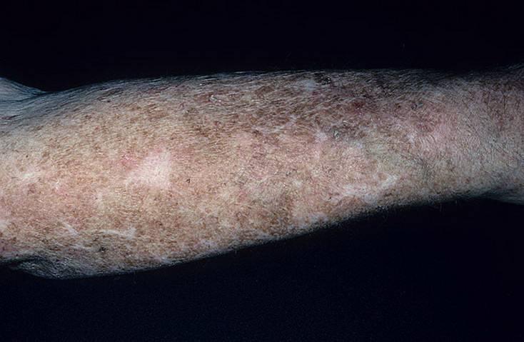 Атрофический дерматит — лечение, симптомы, причины