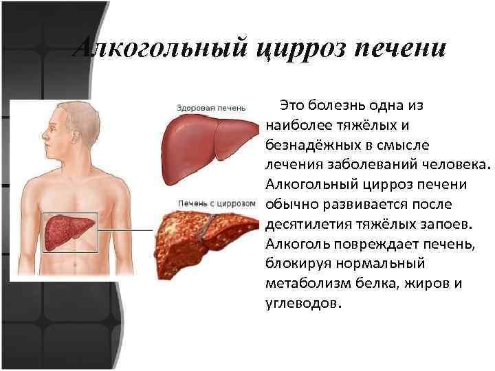 Алкогольный цирроз печени: сколько нужно пить и как потом лечиться?
