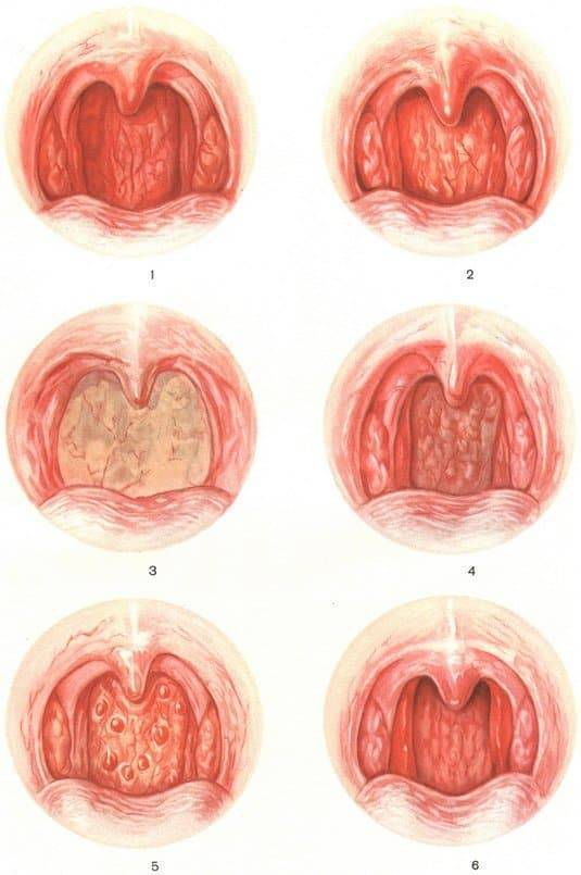 Фолликулярная ангина у детей: лечение, симптомы, фото горла, осложнения