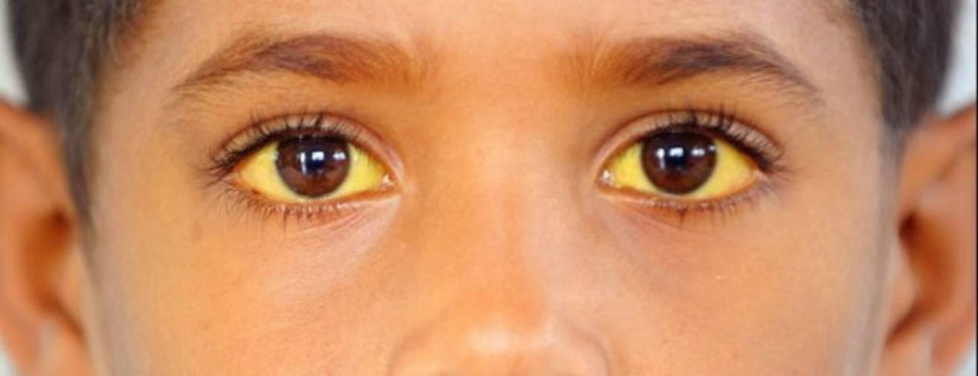 Гипербилирубинемия: какую опасность таит эта патология