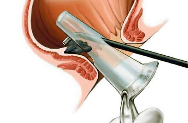 Геморроидальное кровотечение: причины заболевания, основные симптомы, лечение и профилактика