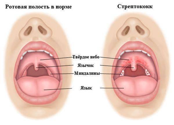 лечение горла комаровский