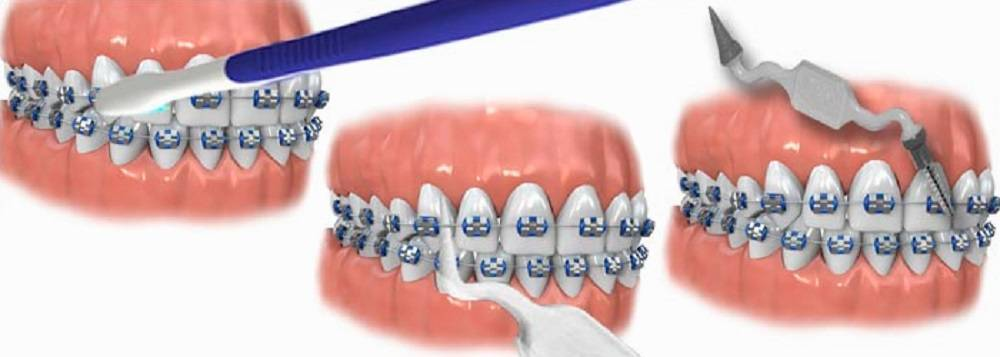 чистка зубов перед установкой брекетов