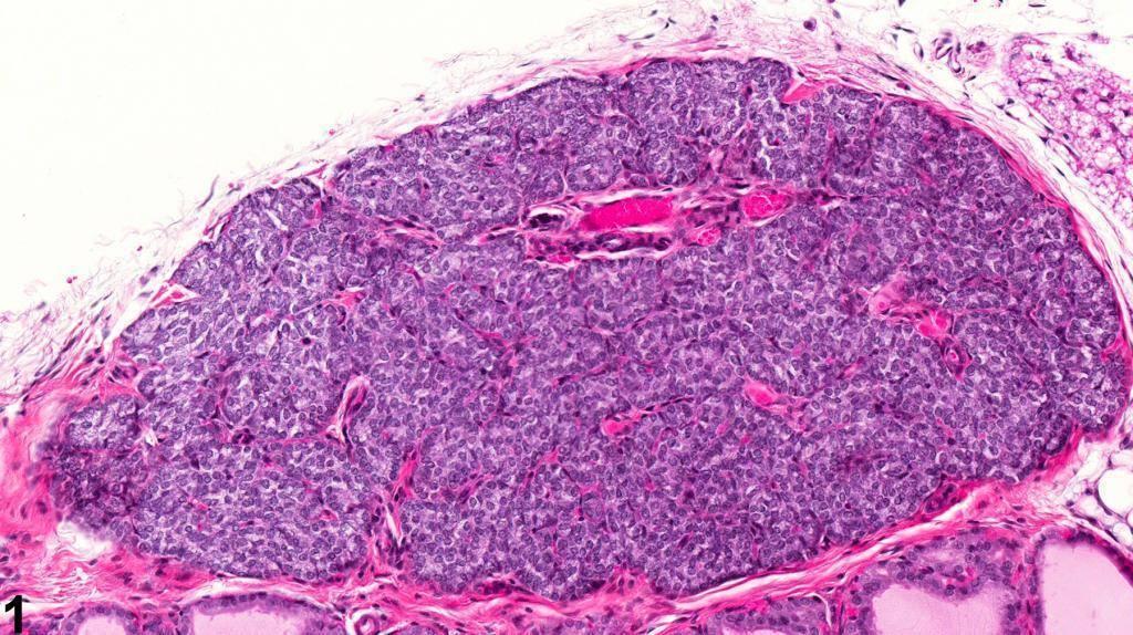 паращитовидная железа гистология