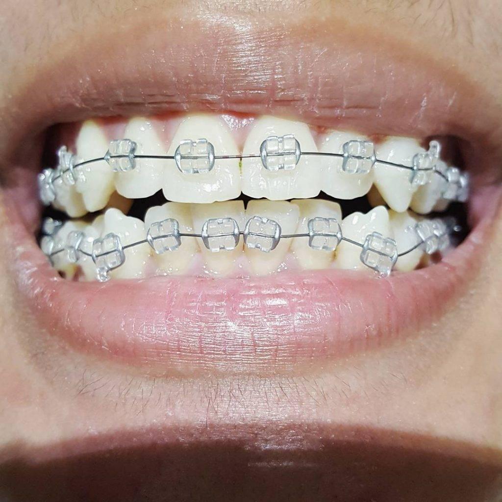 виды зубных брекетов