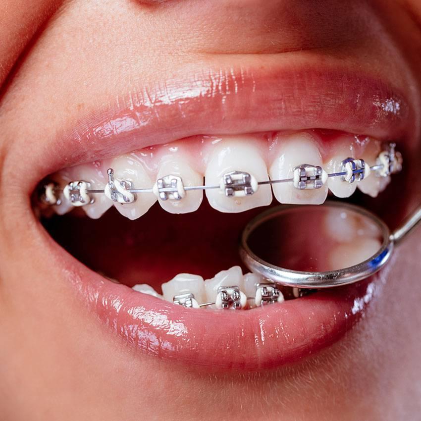 Лигатурные брекеты — металлические и сапфировые зубные конструкции