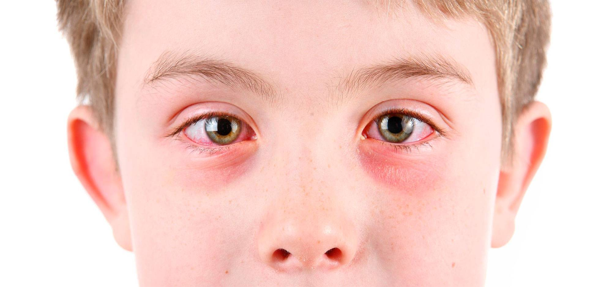 Что делать в домашних условиях, если в глаза попала соринка – доступная инструкция
