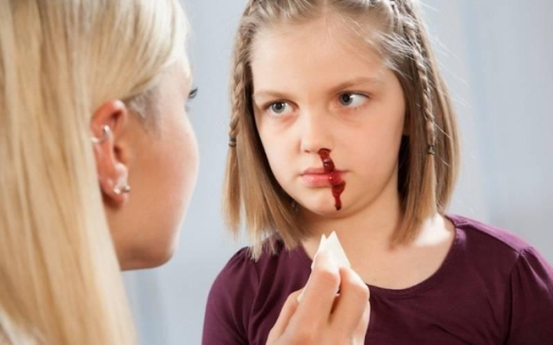 у ребенка кровь из носа постоянно