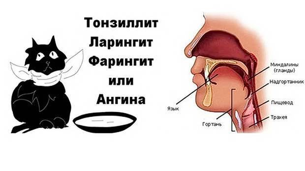 Различия тонзиллита, фарингита и ларингита