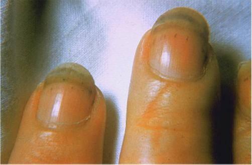 Трихинеллы у человека: симптомы и лечение