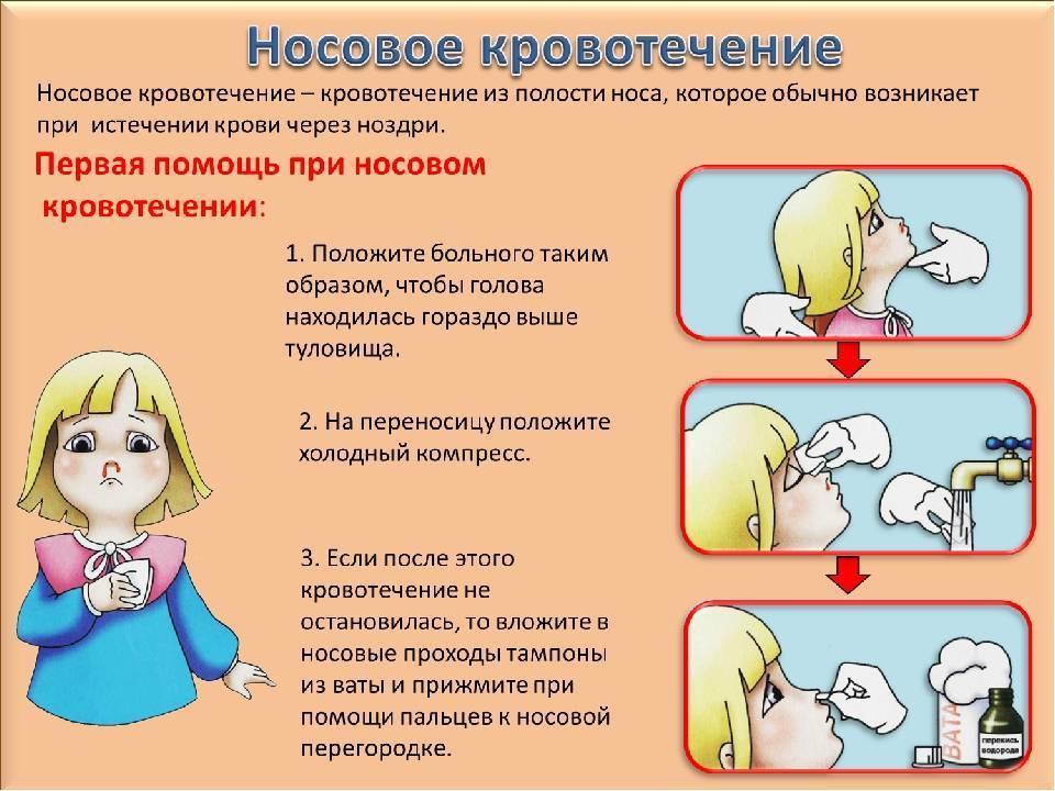 помощь при кровотечении из носа