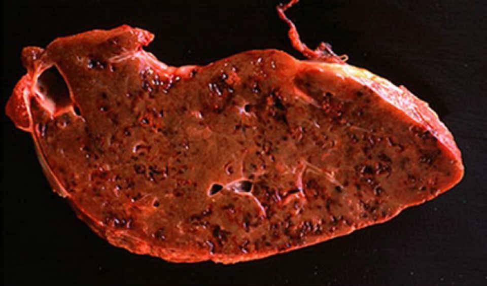 глисты в печени симптомы