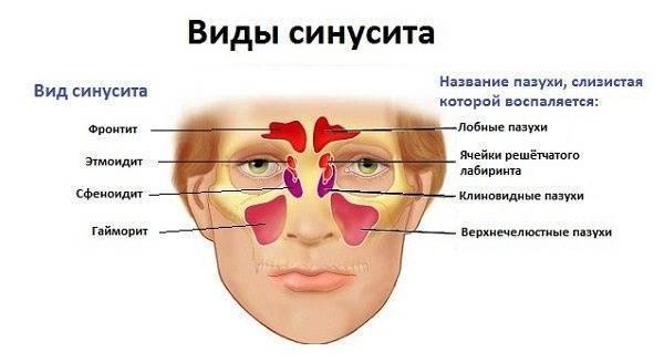 Доктор комаровский о гайморите