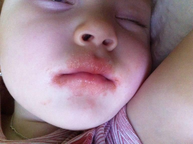 Контактный дерматит на губах как лечить