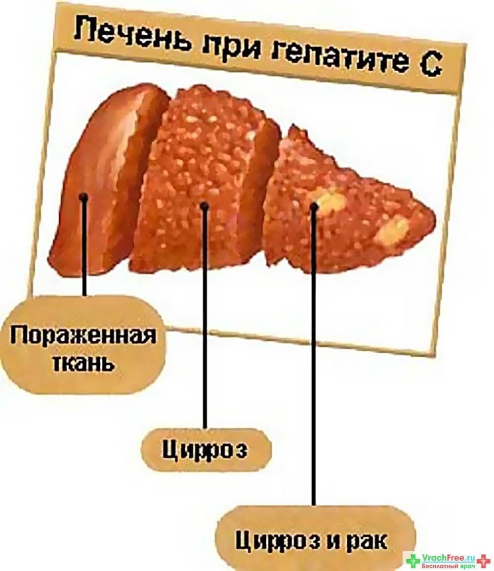 боли в печени при гепатите с