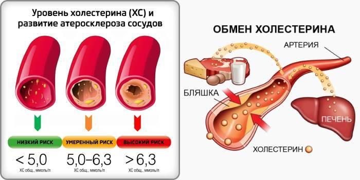 симптомы повышенного уровня холестерина