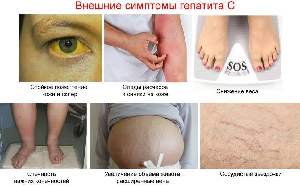 Как проявляется гепатит с у мужчин на ранних и поздних стадиях?