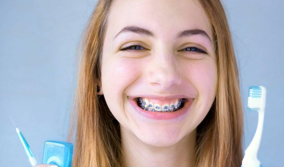 Правила чистки зубов и брекетов: как проводить регулярную гигиену