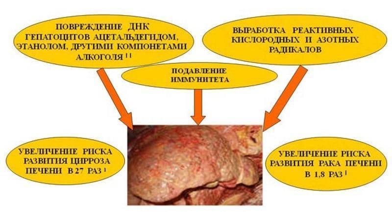 Как алкоголь влияет на печень: что происходит с органом