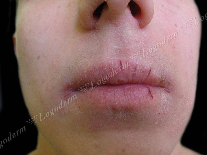 Как вылечить губы от дерматита