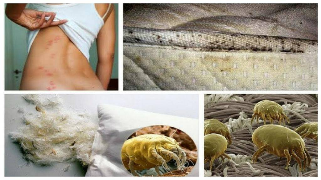 глисты и аллергия у взрослых