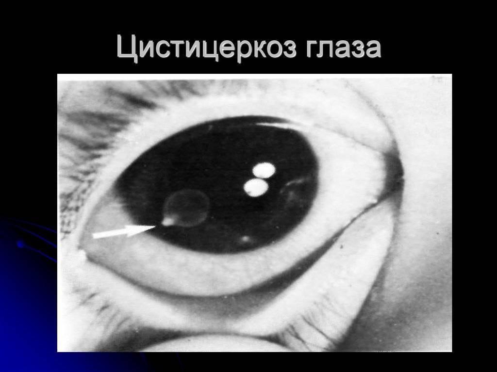цистицеркоз глаз симптомы