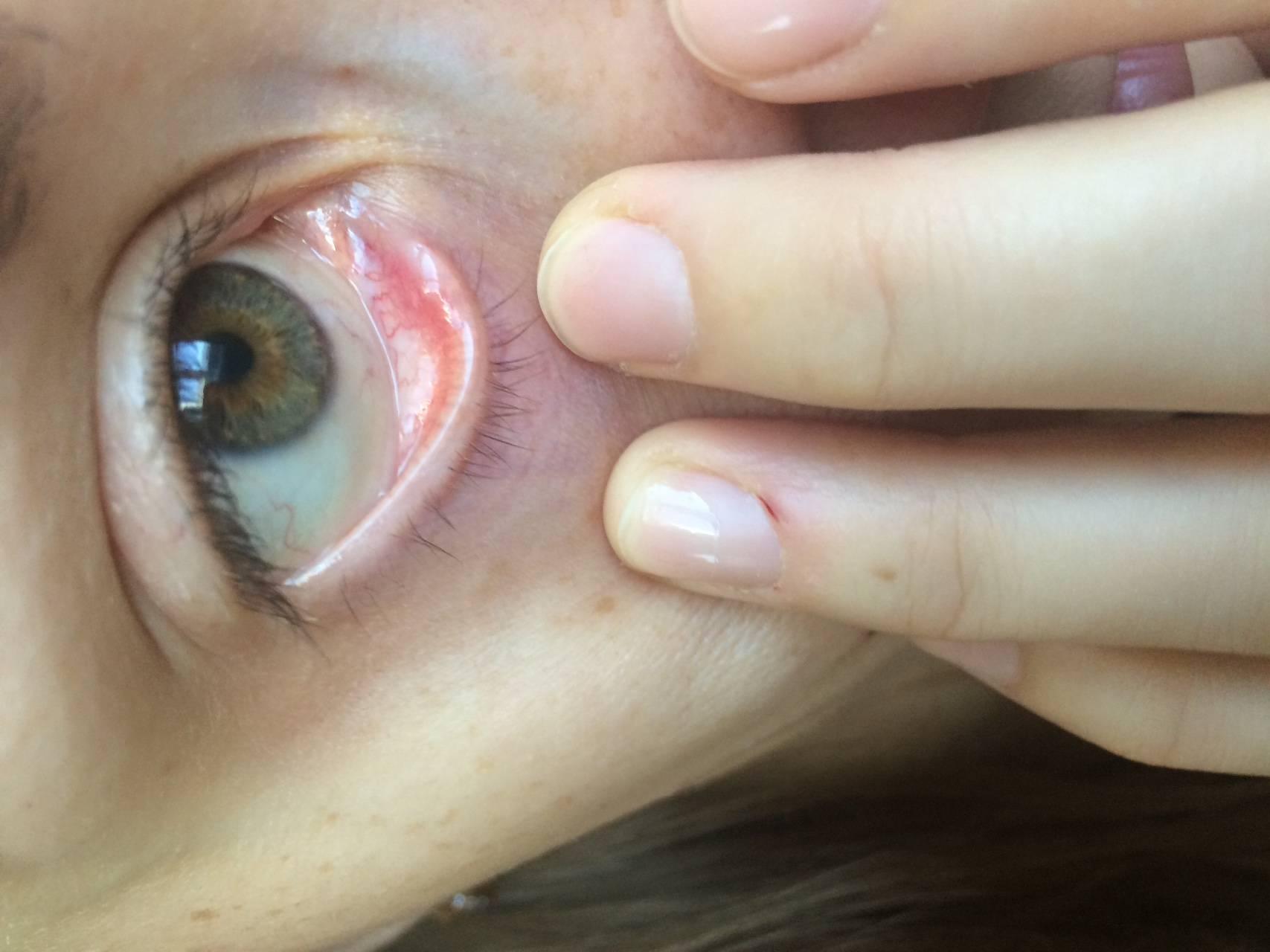 покраснение в уголке глаза у ребенка