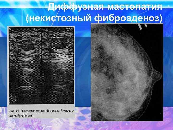 диффузная мастопатия молочной железы