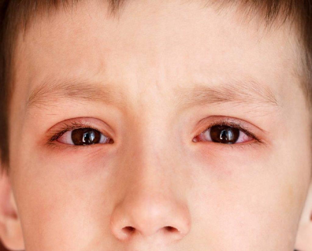 Красные уголки глаз