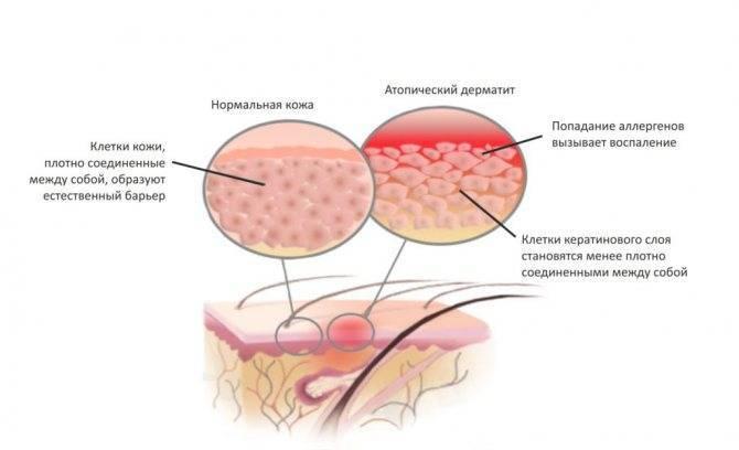 чем лечить аллергический дерматит у детей