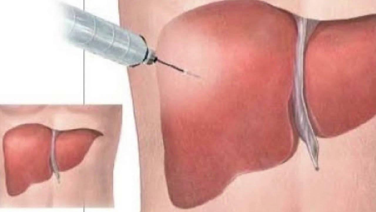 Биопсия печени при метастазах   советы доктора