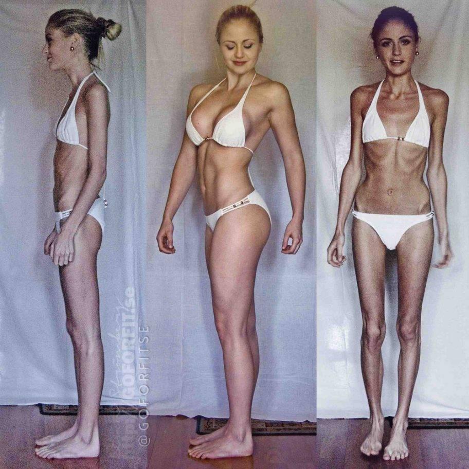 Анорексия: опасный недуг или приговор