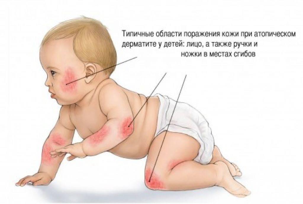 Аллергический дерматит у детей: симптомы, причины и правильное лечение