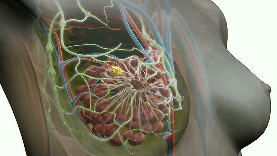 Рак груди: первые признаки появляются слишком поздно. диагностика и лечение рака молочной железы