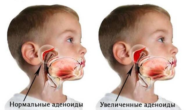 какие последствия после удаления аденоидов у ребенка