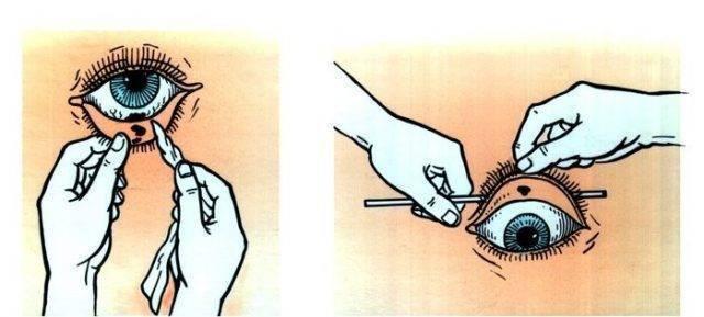 чем промыть глаза ребенку если попал песок