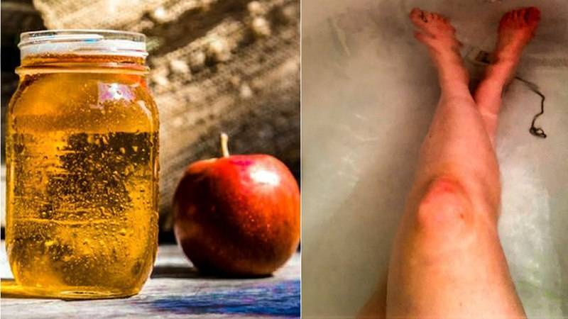 Лечение псориаза яблочным уксусом