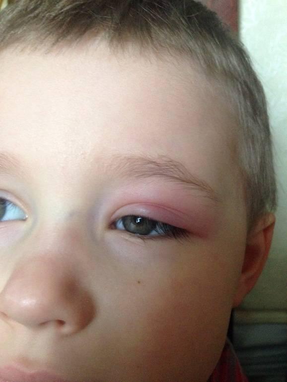Что делать если у ребенка опухло верхнее веко? способы лечения и рекомендации
