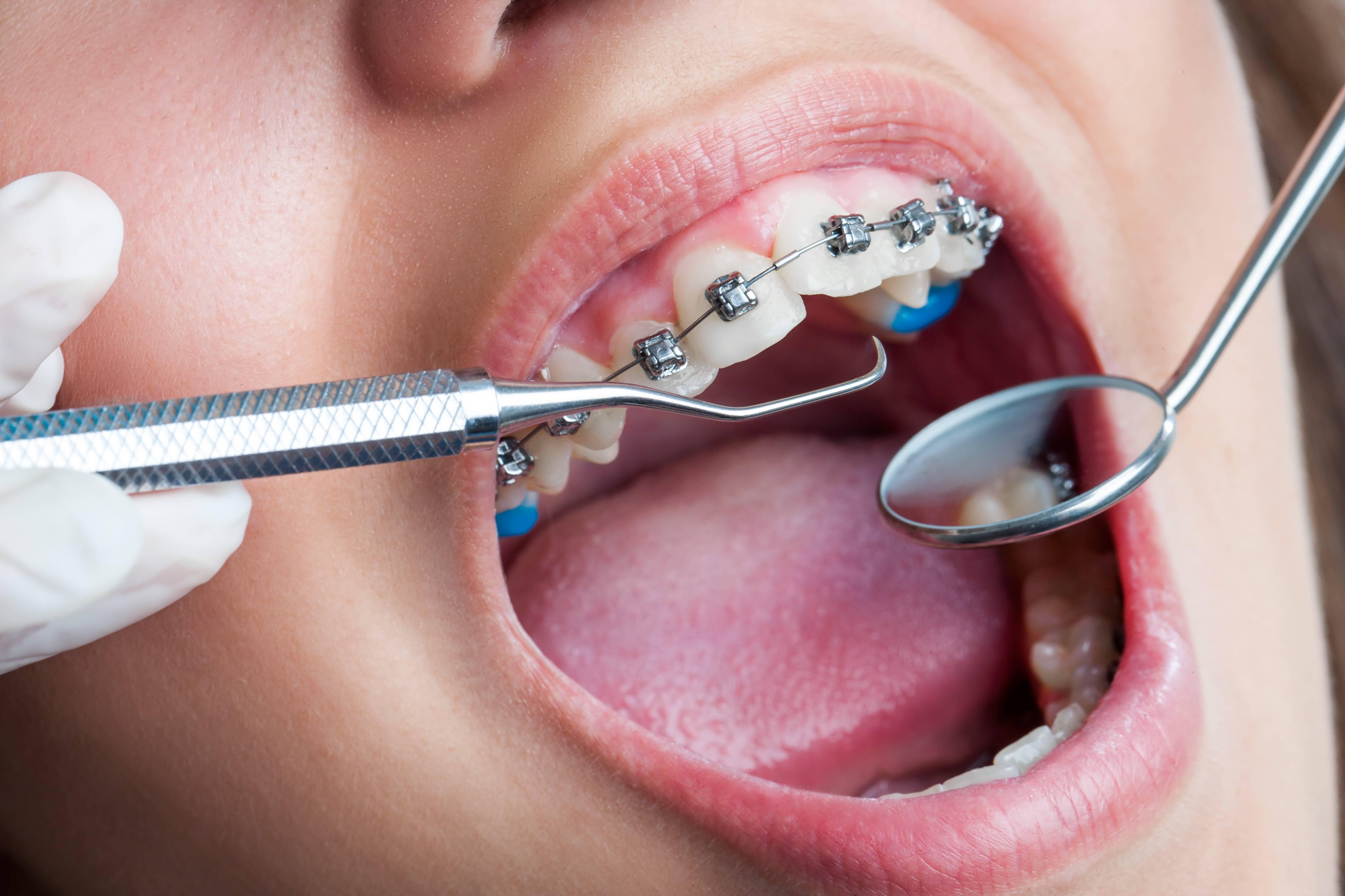 поставили брекеты очень болят зубы что делать
