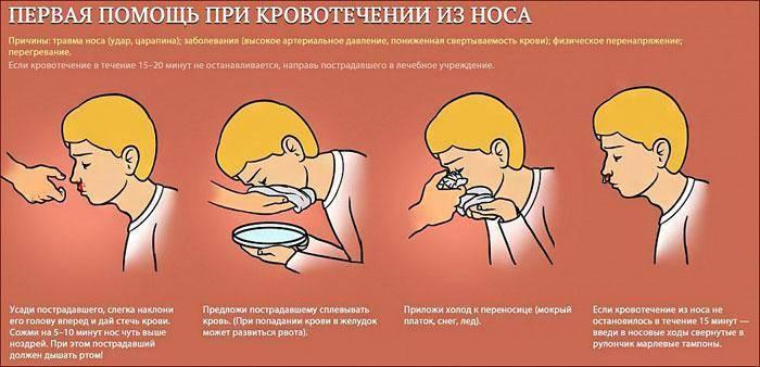 кровь из носа во время сна