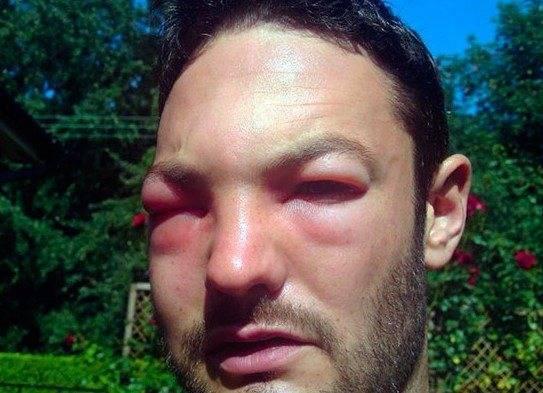 чем лечить укус мошки в глаз