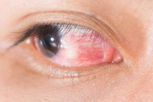 Эписклерит глаза: симптомы и способы лечения