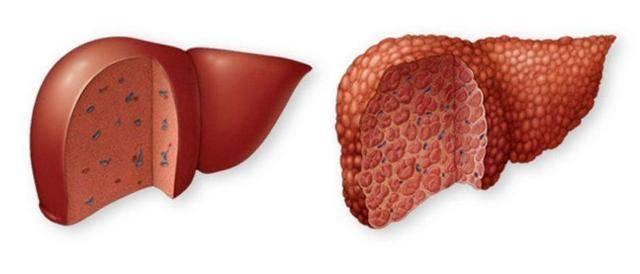 Определение и различные методы лечения стеатоза печени