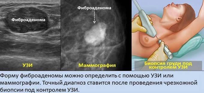 Что такое фиброаденоз молочных желез