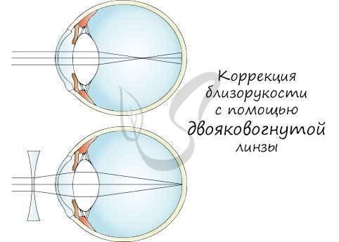 контактные линзы для дальнозоркости