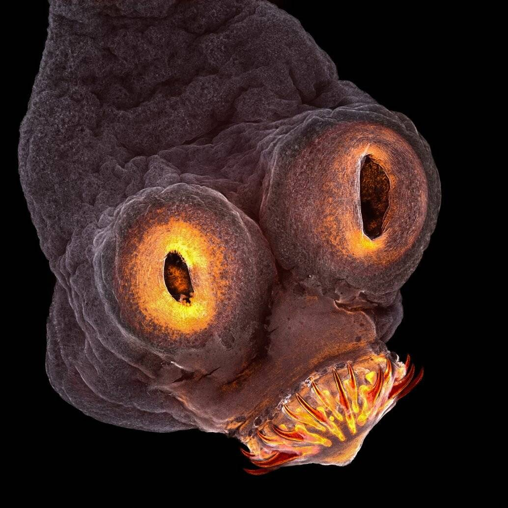черви в голове человека симптомы